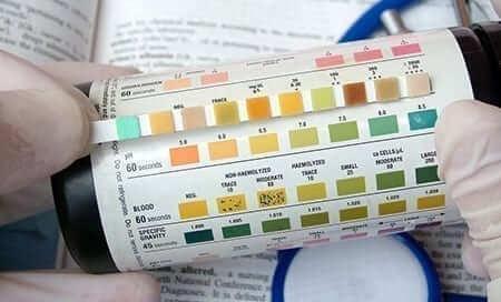Ketoacidosis Urine Blood Test