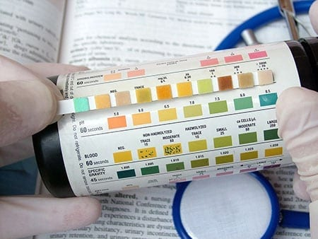 Ketoacidosis Urine Blood Test