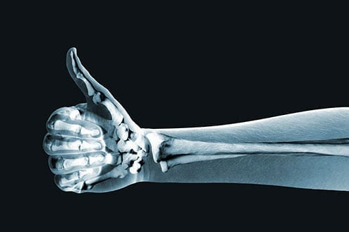 Bone Health and Diabetes