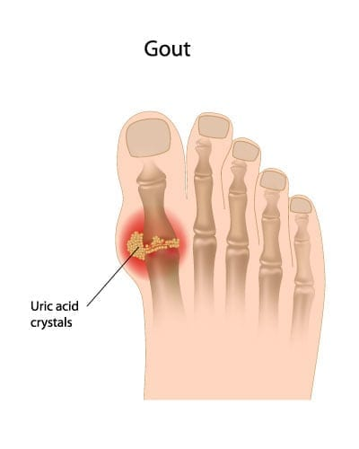 Practical Information on Gout