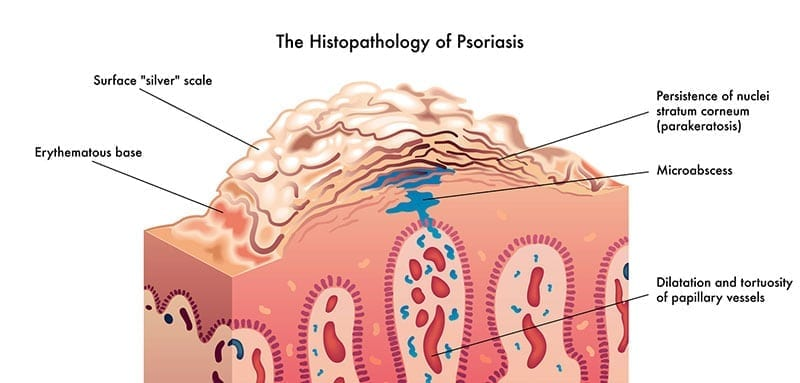 The Histopathology of Psoriasis - Featured Image