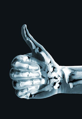 Healthy Bones Thumbs Up