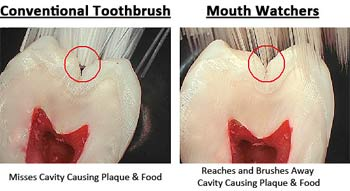 Toothbrushes by Mouth Watchers