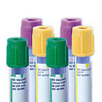 BD Vacutainer Plus Citrate Tube 13 x 75mm 2.7ml 1000/bx Case of 4