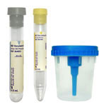 BD Vacutainer 8ml 13x75 Urine Collection Kit With Cup 50/bx 364956